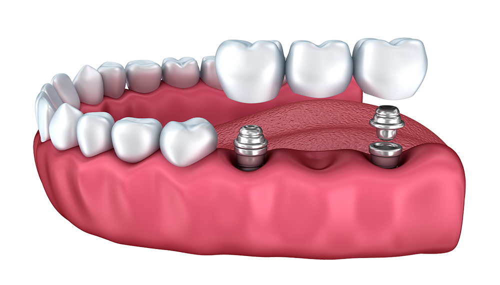 Dental Implants Wrexham