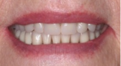 Implant2-After
