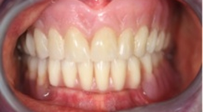 Implant2-Before