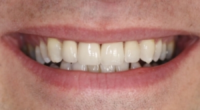 Crowns and Veneers Chester